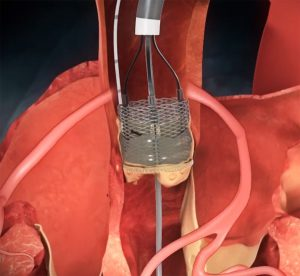 LOTUS edge aortic valve system in body