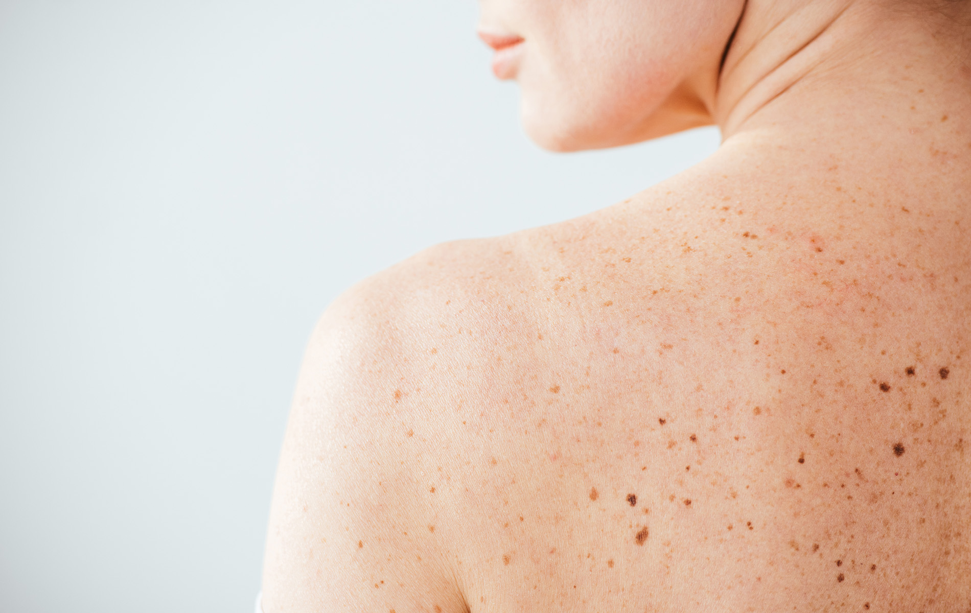 Woman's back with moles