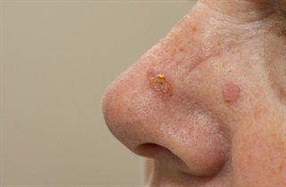 Squamous cell carcinoma on side of woman's nose